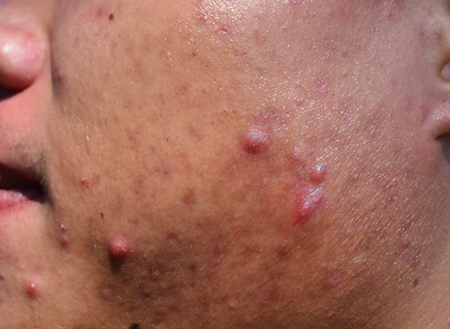 acne on skin face