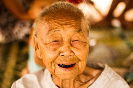 Senior asian woman smiling with black teethใ Stock Photo