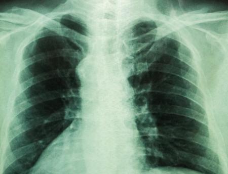 X-Ray film of human body   photo
