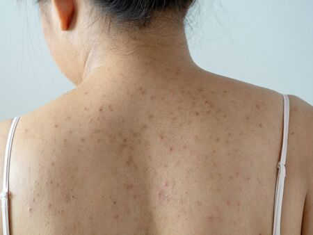 Pimple acne and dark spot on woman dry skin back from allergy cream. Health skin diseases.