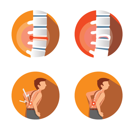 set of  four flat icons with spines problems Illustration