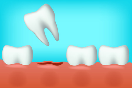 carious: illustration of white teeth on blue background one fell Illustration