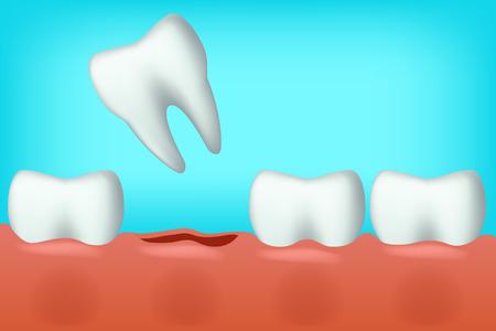 fell: illustration of white teeth on blue background one fell Illustration