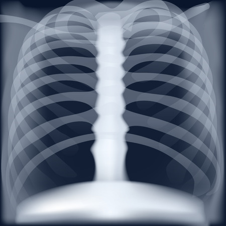 xray medical image of chest Vector illustration.