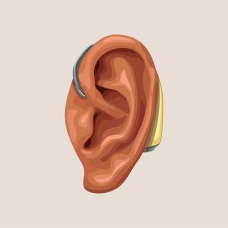 realisitc hearing aid and ear 向量圖像