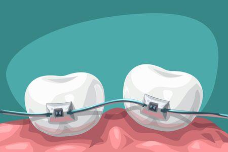 illustration of cartoon teeth with steel braces on blue background Ilustración de vector