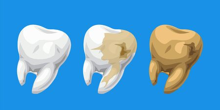 cartoon teeth healthy and caries Ilustração