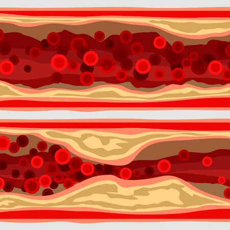 artery set with blood cells