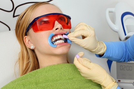 During the process of teeth whitening  Stock Photo