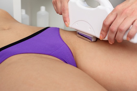Laser hair removal within part of bikini. Intentional shallow depth of field.  Stock Photo - 9344414