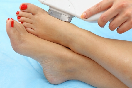 Laser hair removal on lady's legs. Intentional shallow depth of field.  Stock Photo - 9344430