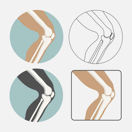 Human knee joint icon set, logo for orthopedic clinic, flat styl