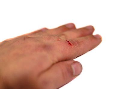 Male hand with bleeding index finger isolated on white background