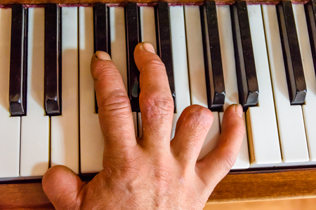Injured male hand on a shiny piano keys. Top view