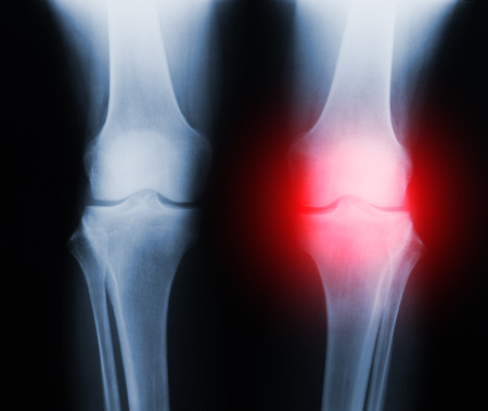 Negative x-ray skiagrames of the human knee joint (front view) with a trauma (pain) marked by red.