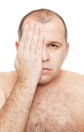 man covering his eye, isolated on white photo