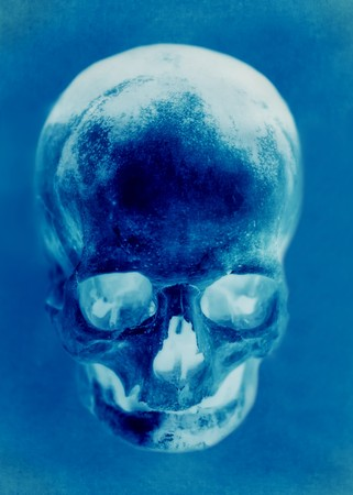 Skull of the person close up Stock Photo - 8261379