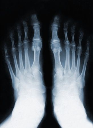 Foot fingers exposed on x-ray