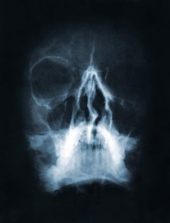 Front face skull x-ray image Stock Photo