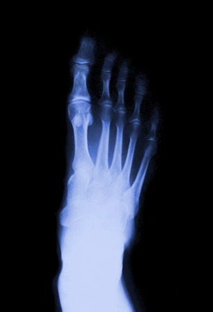thumb x ray: Foot fingers on the x-ray