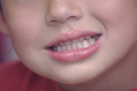 open mouth and teeth of a young child Stock Photo