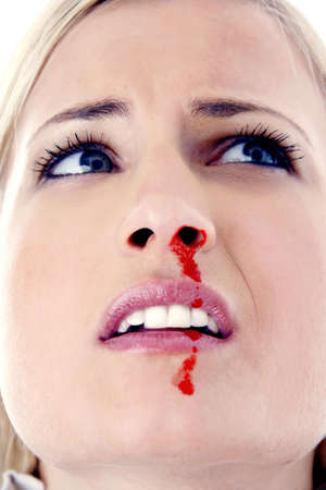 Woman with a nosebleed Stock Photo - 3191770