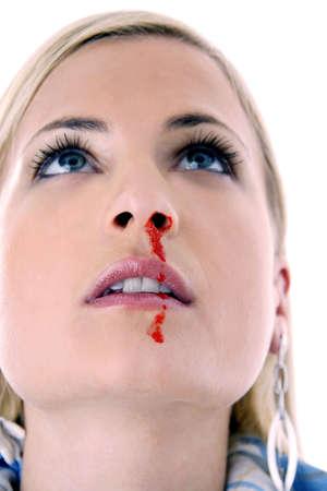 hemorragias: Mujer con un sangrado por la nariz