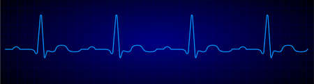 Heartbeat line. Blue electrocardiogram. Medical cardiogram on grid background.