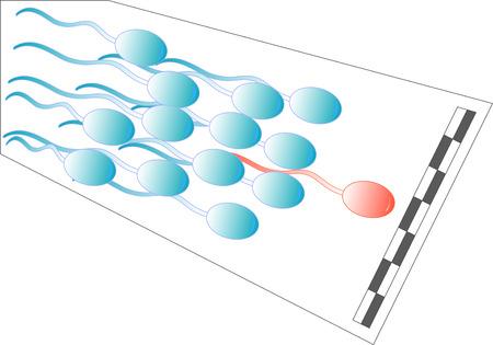 fetation: Running spermatozoids with leader