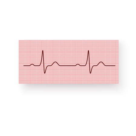 Heart Rate or a Heartbeat on a plotting paper. Cardiogram of the heart on a graph paper. Cardiogram of a healthy heart. Vector illustration isolated on white background