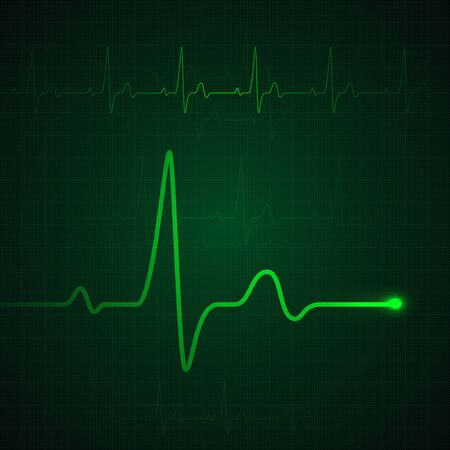 Heart pulse on green display. Heartbeat graphic or cardiogram. Medicine monitoring stress rate. Vector illustration Illustration
