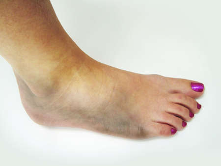 Bruised ankle Stock Photo - 3192800