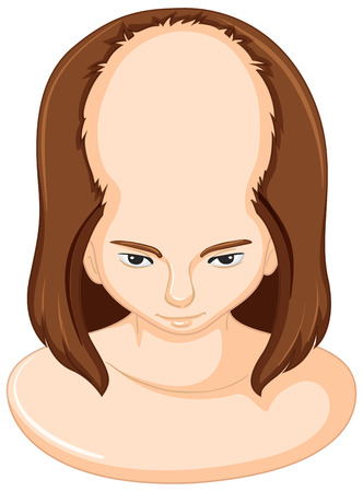 bald girl: Girl lossing lots of hair illustration