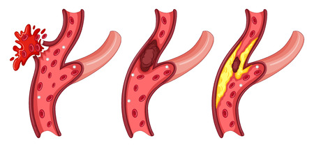 vein: Symptoms in human vein illustration Illustration