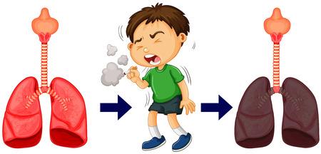 joven fumando: fumar niño y una ilustración de cáncer de pulmón