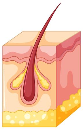 zit: Pimple diagram under human skin illustration