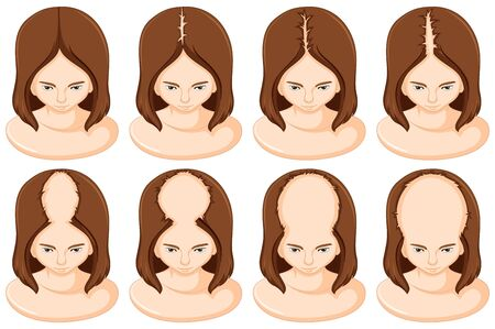 Stages of hair loss in woman 向量圖像