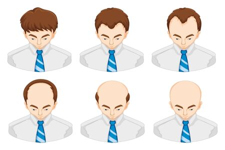 Stages of hair loss in man