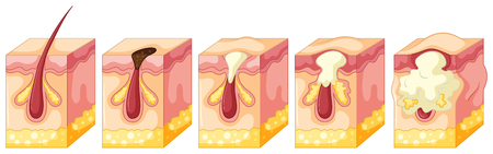 puberty: Diagram of pimple on human skin illustration