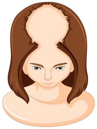 Woman lossing a lot of hair