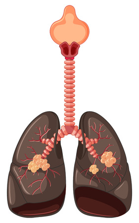 lung cancer: Diagram of lung cancer illustration