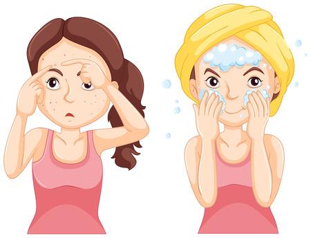 Vrouw wassen gezicht en vrouw met puistjes illustratie Vector Illustratie