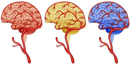 Brain cancer on white background illustration Illustration