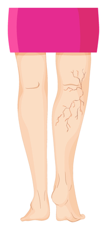 woman foot: Varicose veins on human legs illustration Illustration