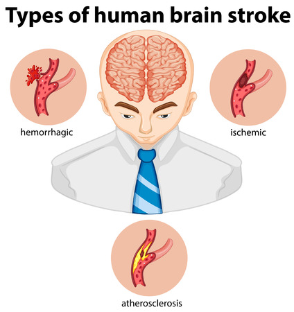 stroke: Types of human brian stroke illustration