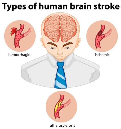 atherosclerosis: Types of human brian stroke illustration