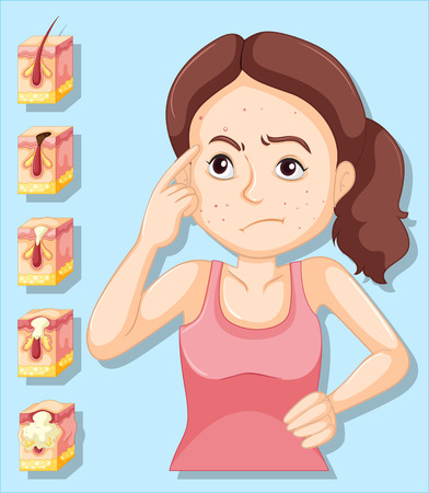 puberty: Woman and pimple problems illustration Illustration