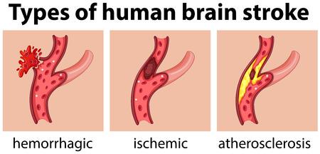 Rodzaje udaru mózgu człowieka ilustracji