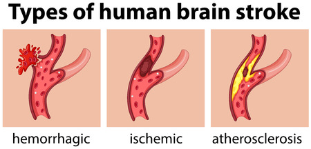 atherosclerosis: Types of human brain stroke illustration