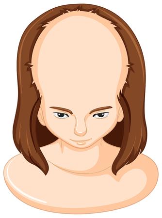 lose: Hair lose in woman illustration